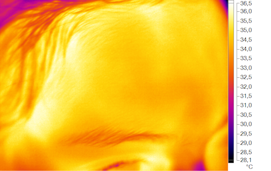 Thermal image of a forehead